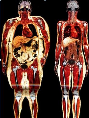 Um corpo com excesso de tecido adiposo e outro normal